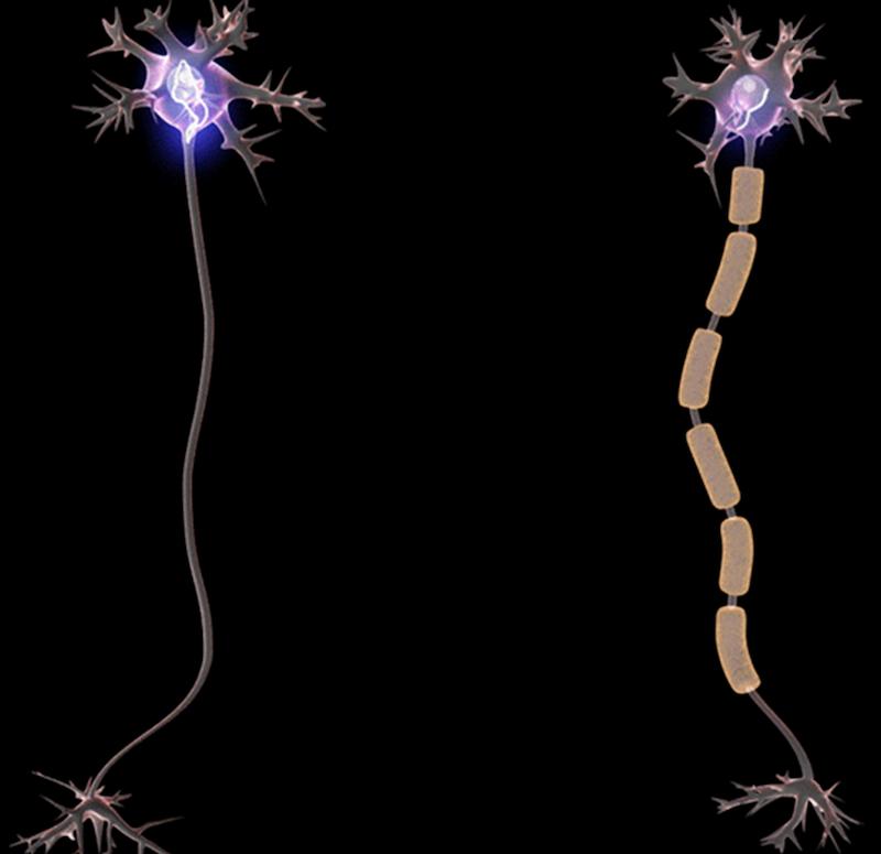 So sánh việc truyền tin khi có và khi không có myelin dày. Ảnh: Wikipedia.